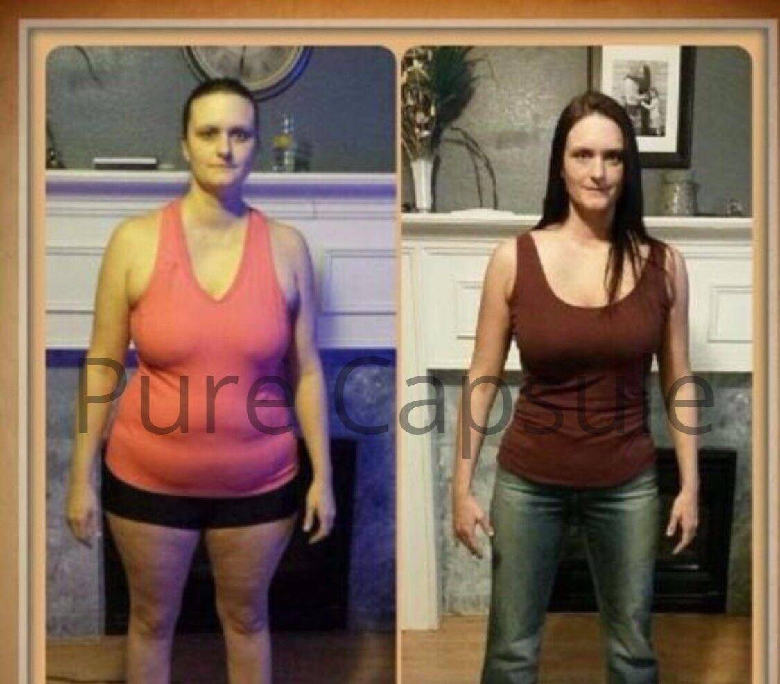 Weight loss norwood ma