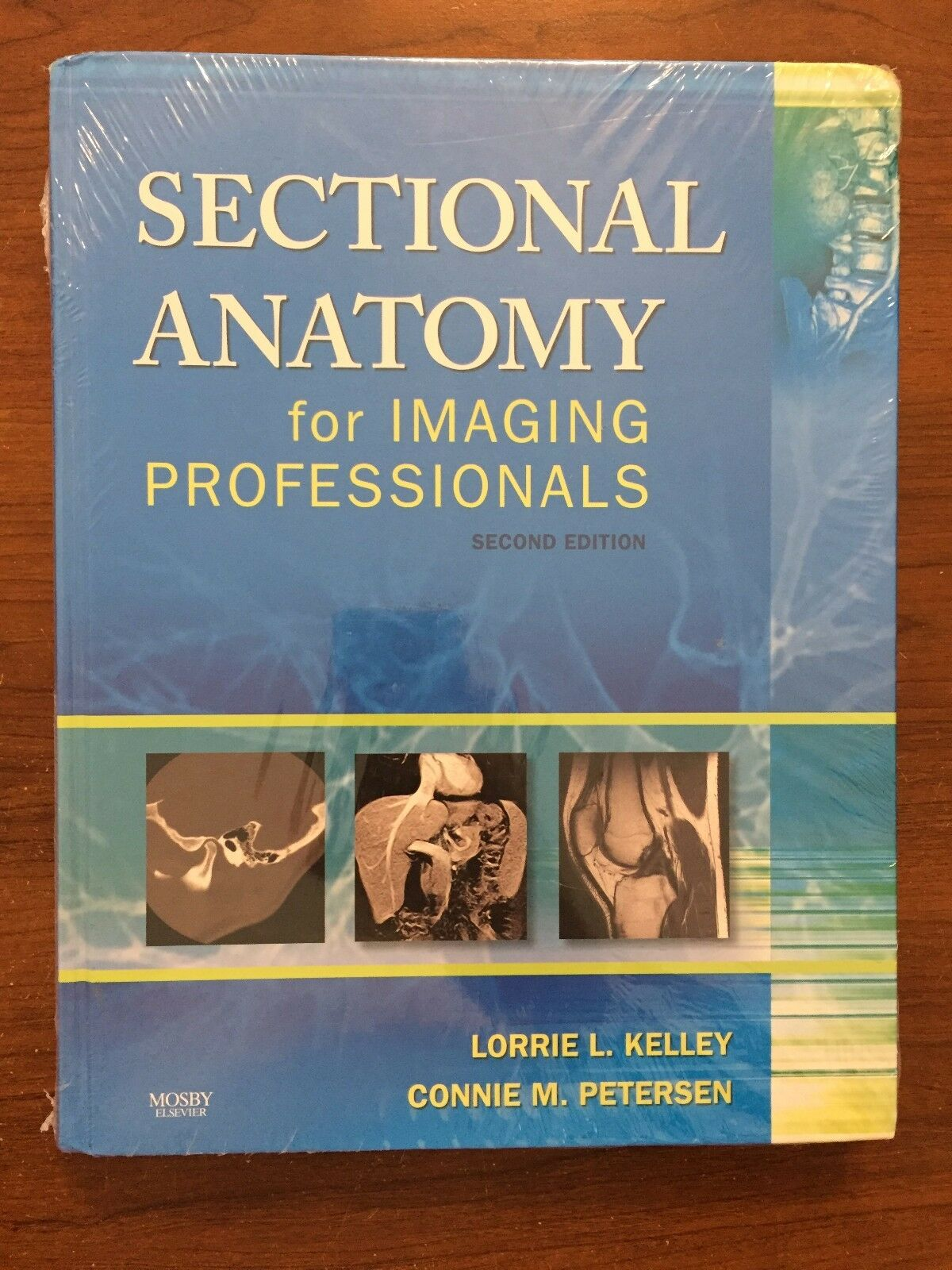 Sectional Anatomy for Imaging Professionals by Connie Petersen and ...
