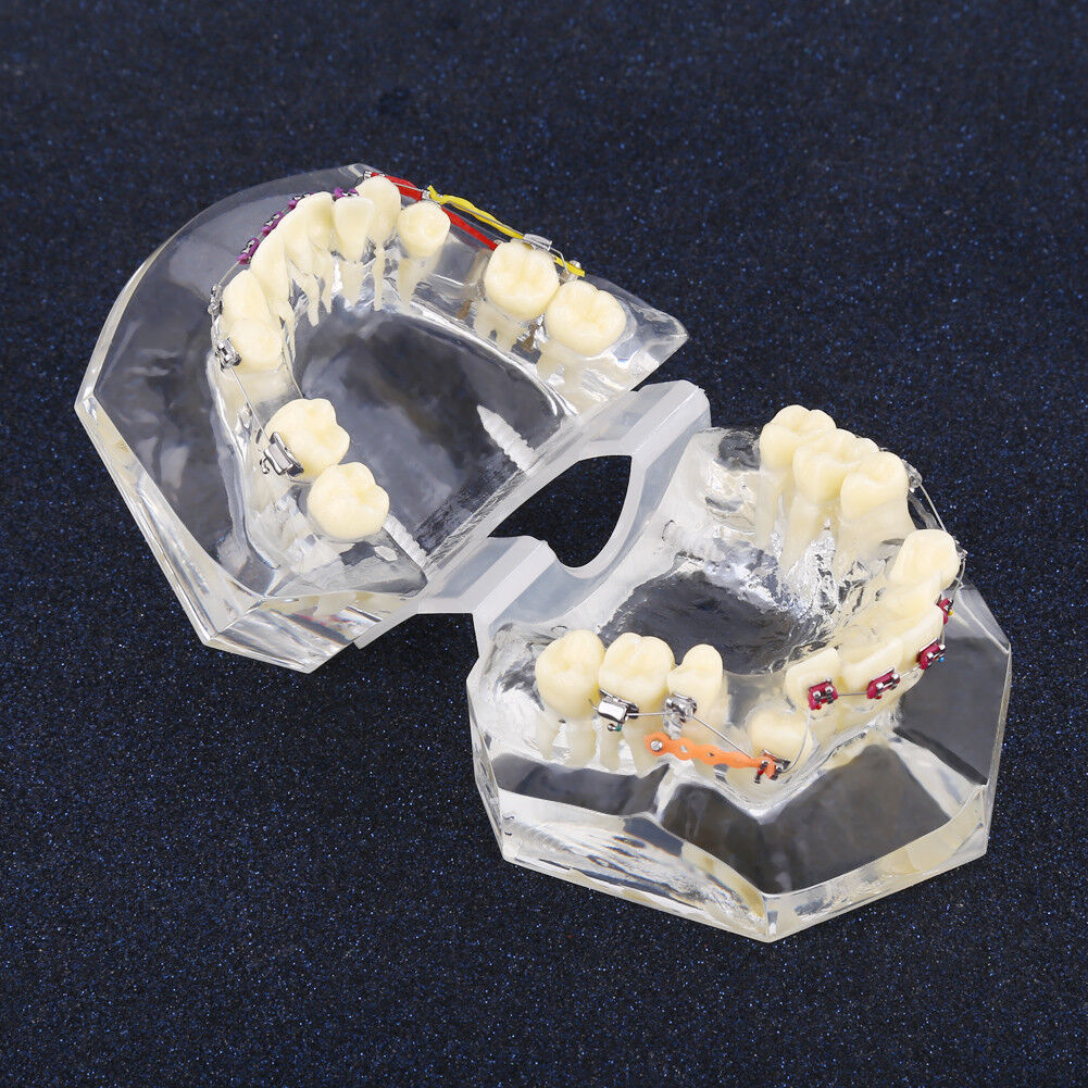 Dental Orthodontic Treatment Malocclusion Model With Brackets Chain ...