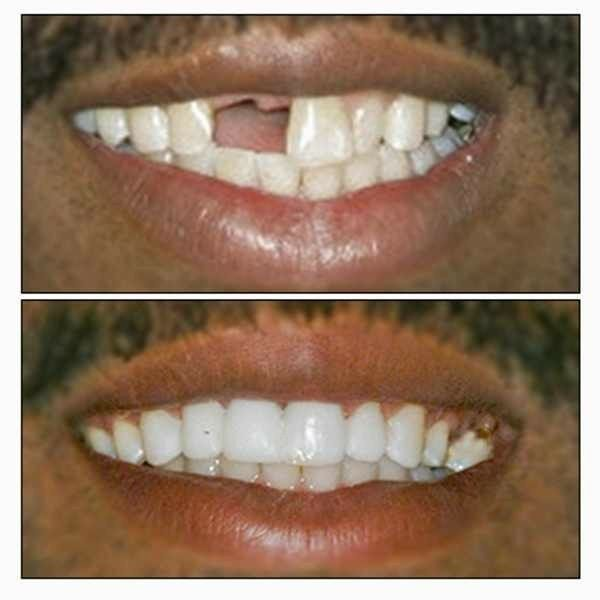 Temporary tooth teeth kit for 30 teeth it really works cosmetic 1 solutioingenieria Image collections