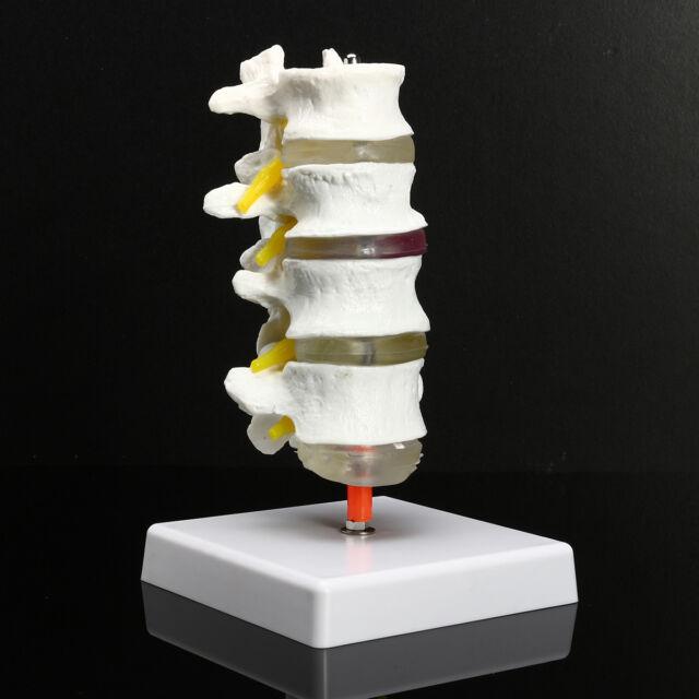 4 Part Chiropractic Human Anatomical Lumbar Vertebrae Spine Anatomy