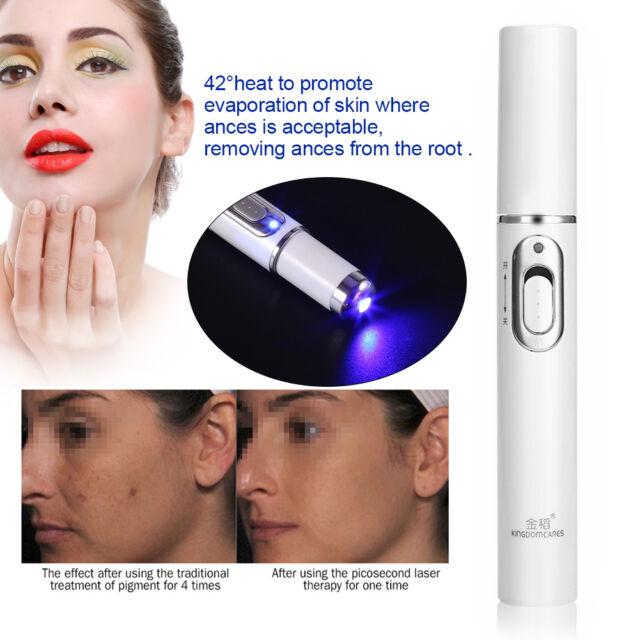 laser treatment for skin blemishes